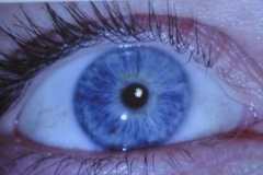 iridologia4
